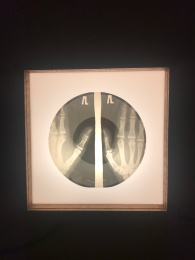 Gramophone record made from used x-ray film. There was another of a skull but most were just random x-rays.